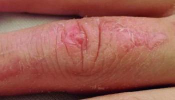 dog bite after 6 months