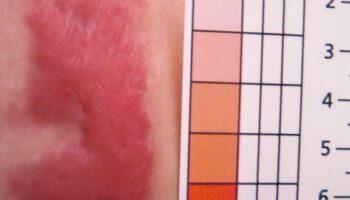 Case study keloïd scar