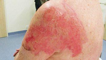 Case study start therapy burn scar