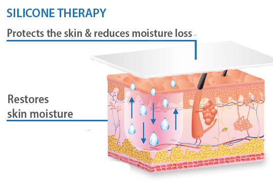 silicone therapy